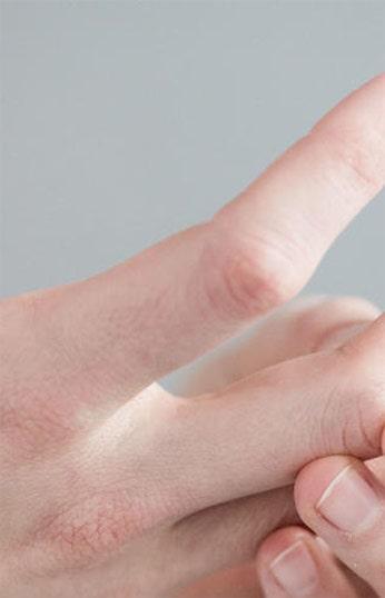 Romatoid artrit kronik midir?