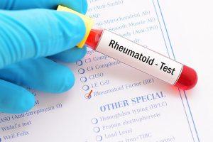 CRP test iltihap romatizma