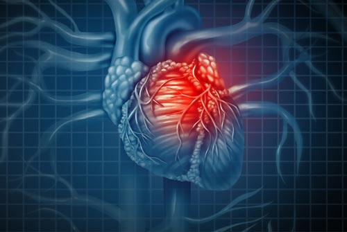 Kalp Krizi ve İltihaplı Romatizma