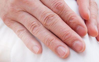 Kronik Hastalık Romatoid Artrit